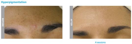 hydrafacial hyperpigmentation