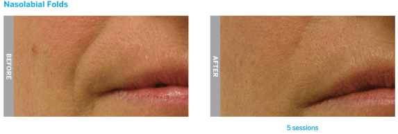 hydrafacial nasolabial folds