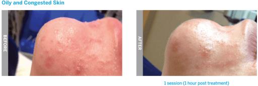 hydrafacial oily skin