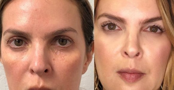 Irina Dysport Botox